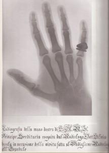 (**) Radiografia mano destra del Principe Umberto